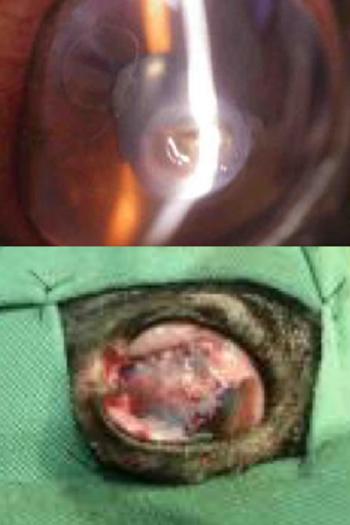 結膜フラップ